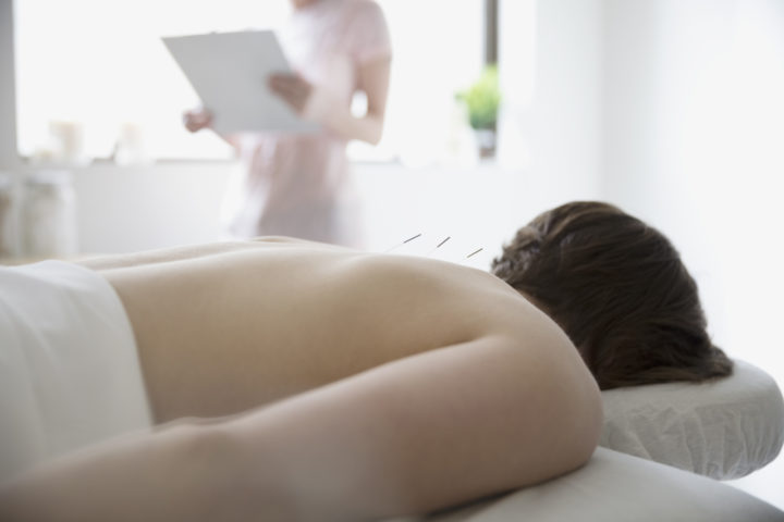 Acupuncture Didn't Help Women Conceive, Study Claims